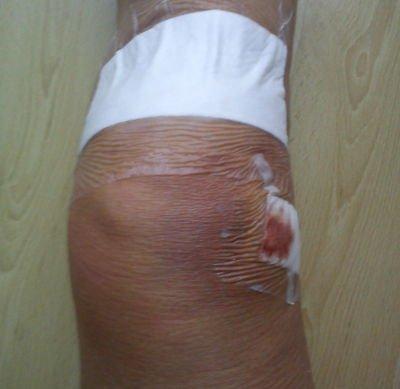 Knie punktieren wegen Hämatom