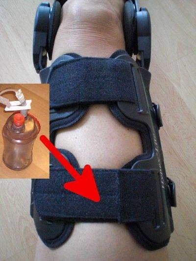 Tipps im Krankenhaus - Knieschiene als Befestigung mit Drainage
