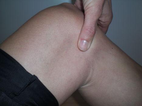 Meniskus Druckschmerz Kniegelenkspalt deutet auf Meniskusriss