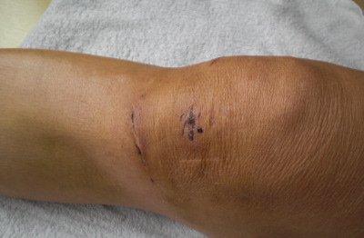 Kreuzbandriss OP und keine Knieprobleme