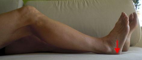 Kreuzbandriss Übungen Oberschenkelrückseite oder Hamstrings isometrisch