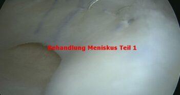 Meniskus Behandlung mit Meniskustransplantation
