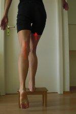 Übung Knie Reha - Aufsteiger vorwärts nach Kreuzbandriss Operationen