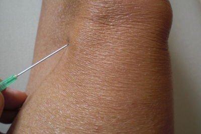 Hyaluronsäure Gelenkschmiere für das Knie