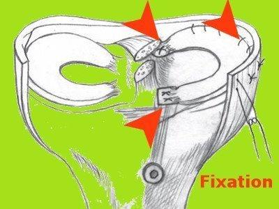 Meniskustransplantation Anatomie Knie