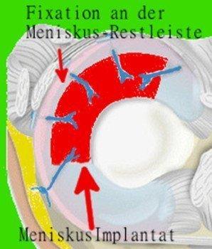 Meniskusersatz - künstliches Meniskusimplantat