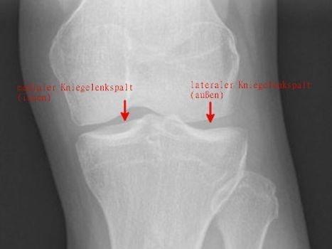 Meniskusriss Symptome - Kniegelenkspalt