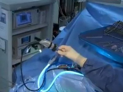 MRSA Behandlung - Operatives Spülen Kniegelenk