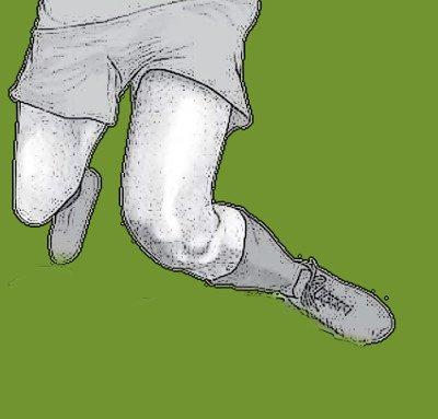 Knie Valgusverdrehtrauma - Kreuzbandriss