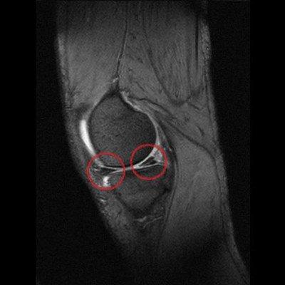 Verschleiß im Knie - MRT Inneneniskusriss am Hinterhorn