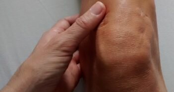 Osteopathie nach Kreuzbandriss