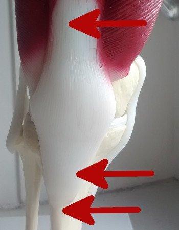 Jumpers Knee - Symptome beim Springerknie