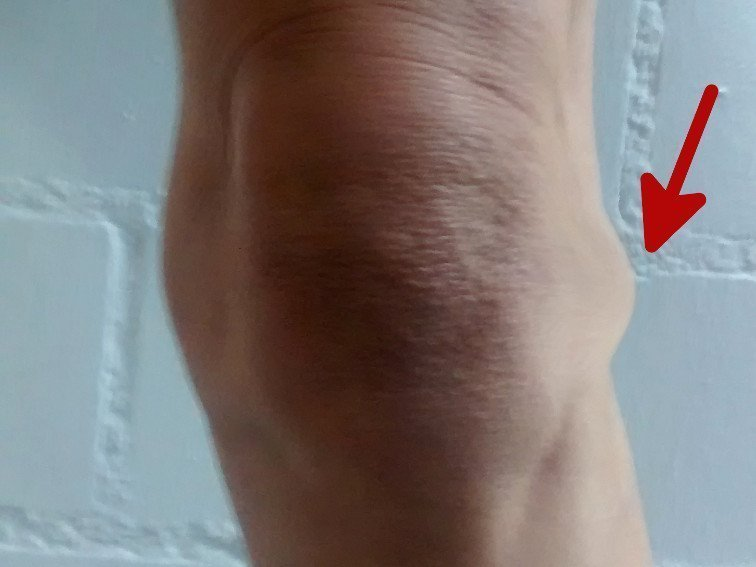 Kniescheibe neben knieschmerzen innen Knieschmerzen: Symptome,