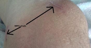 Instabile Kniescheibe operiert mit MPFL-Plastik