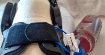 Infektion im Kniegelenk