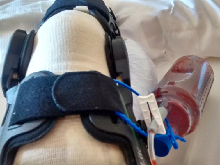 20 Punkte, die dein Risiko für Infektionen im Kniegelenk