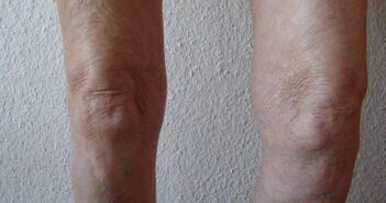 Erhöhtes Arthroserisiko trotz Kreuzband-OP