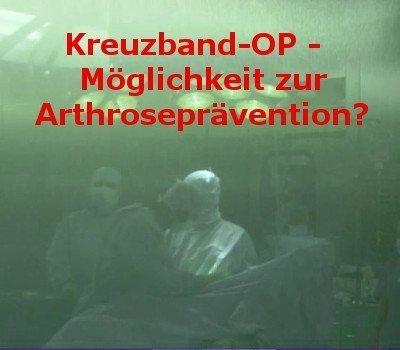 Arthroserisiko nach Kreuzbandriss-OP