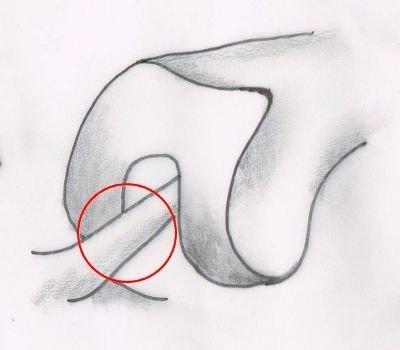 Kreuzbandriss Typ 2: Erhaltener Synovialschlauch