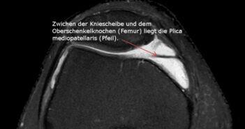 Darstellung der Plica im MRT