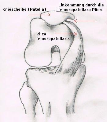 Einklemmung Plica Falte im Knie