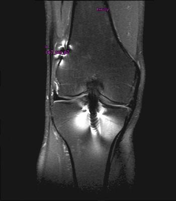 MRT Bilder Kniegelenk mit Metallartefakten