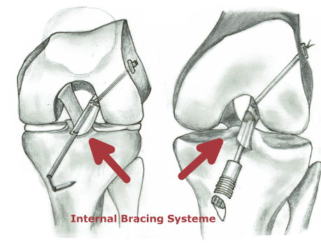 Internal Bracing OP Kreuzband