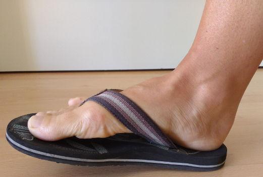 Falsche Schuhe verursachen auch Knieschmerzen