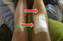 Bluterguss nach Knie-OP