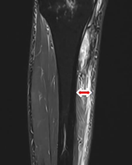 Einblutung im Unterschenkel nach Kreuzband OP