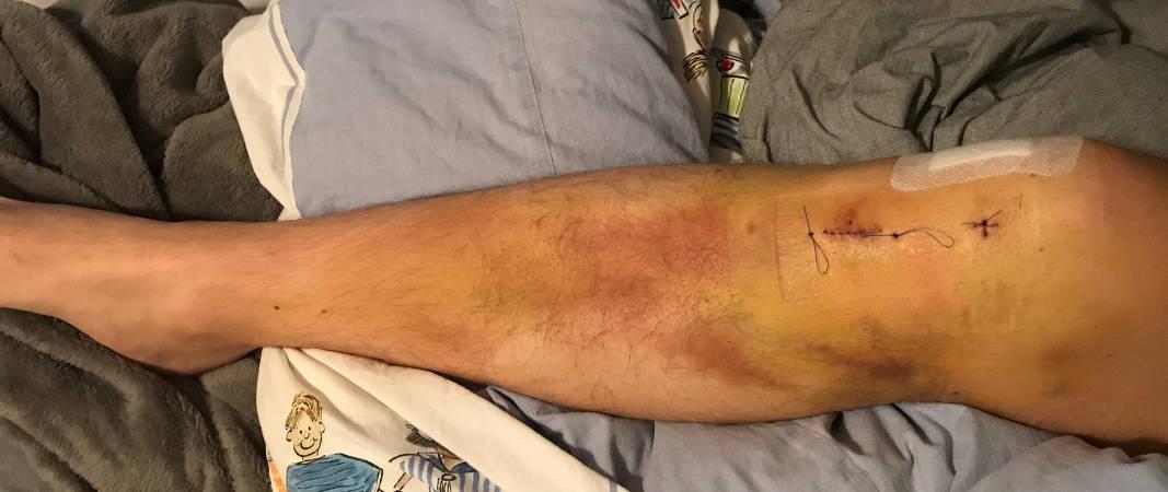 Hämatom am Knie nach OP