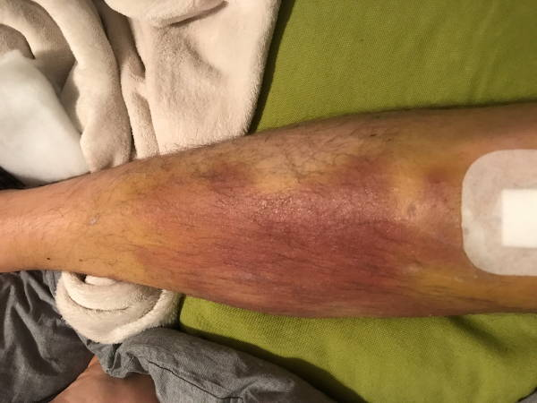 Hämatom am Schienbein nach Knie OP